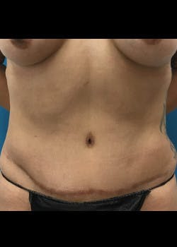 Liposuction Gallery - Patient 46613146 - Image 1