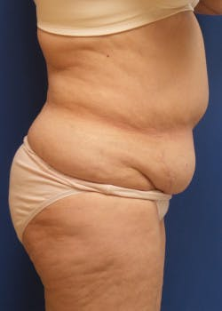 Liposuction Gallery - Patient 46613152 - Image 1