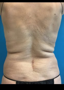 Liposuction Gallery - Patient 46613161 - Image 3