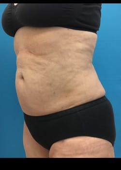 Liposuction Gallery - Patient 46613161 - Image 6