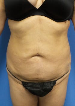 Liposuction Gallery - Patient 46613186 - Image 2