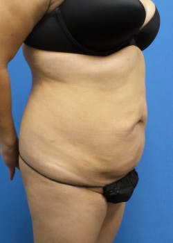 Liposuction Gallery - Patient 46613186 - Image 6