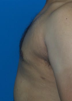Liposuction Gallery - Patient 46613191 - Image 4