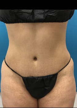 Liposuction Gallery - Patient 46613210 - Image 1