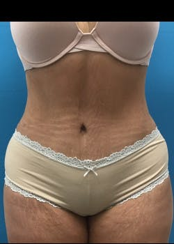 Liposuction Gallery - Patient 46613210 - Image 2