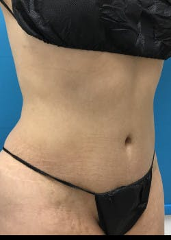 Liposuction Gallery - Patient 46613210 - Image 3