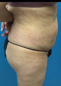 Liposuction Gallery - Patient 46613597 - Image 2