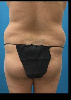Liposuction Gallery - Patient 46613597 - Image 5