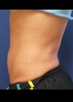 Liposuction Gallery - Patient 46613598 - Image 2