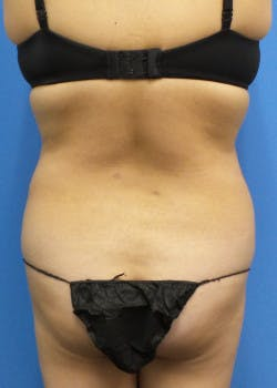 Liposuction Gallery - Patient 46613601 - Image 4