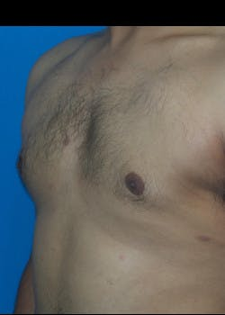 Liposuction Gallery - Patient 46613603 - Image 2