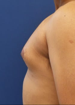 Liposuction Gallery - Patient 46613603 - Image 3