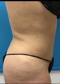 Liposuction Gallery - Patient 46613604 - Image 5