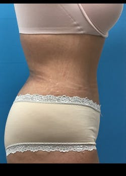 Liposuction Gallery - Patient 46613604 - Image 6