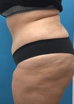 Liposuction Gallery - Patient 46613880 - Image 4
