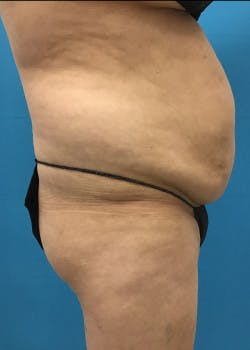 Liposuction Gallery - Patient 46613907 - Image 1