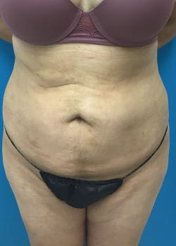 Liposuction Gallery - Patient 46613907 - Image 4