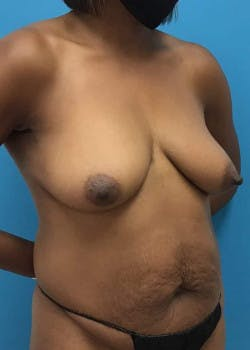 Breast Augmentation Gallery - Patient 46614240 - Image 1