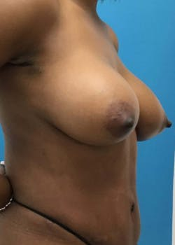 Breast Augmentation Gallery - Patient 46614240 - Image 2