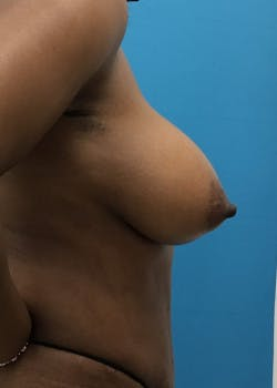 Breast Augmentation Gallery - Patient 46614240 - Image 4
