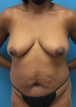 Breast Augmentation Gallery - Patient 46614240 - Image 5