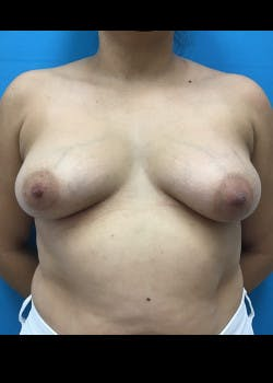 Breast Augmentation Gallery - Patient 46614274 - Image 1