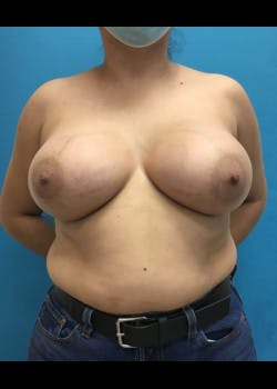 Breast Augmentation Gallery - Patient 46614274 - Image 2