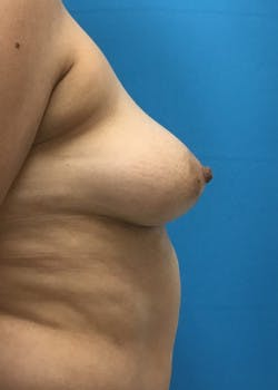 Breast Augmentation Gallery - Patient 46614274 - Image 3