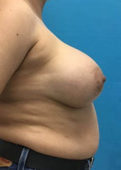 Breast Augmentation Gallery - Patient 46614274 - Image 4