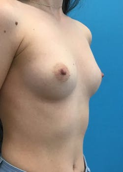Breast Augmentation Gallery - Patient 46614330 - Image 1