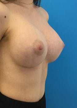 Breast Augmentation Gallery - Patient 46614330 - Image 2