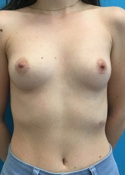 Breast Augmentation Gallery - Patient 46614330 - Image 3