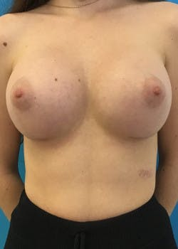 Breast Augmentation Gallery - Patient 46614330 - Image 4