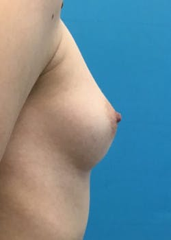 Breast Augmentation Gallery - Patient 46614330 - Image 5
