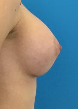 Breast Augmentation Gallery - Patient 46614330 - Image 6