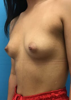 Breast Augmentation Gallery - Patient 46614353 - Image 1
