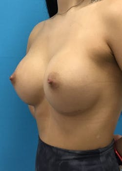 Breast Augmentation Gallery - Patient 46614353 - Image 2