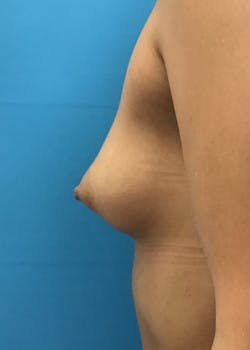 Breast Augmentation Gallery - Patient 46614353 - Image 3