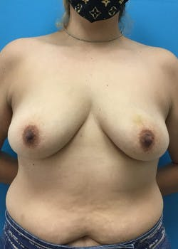 Breast Augmentation Gallery - Patient 46614387 - Image 1