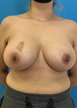 Breast Augmentation Gallery - Patient 46614387 - Image 2
