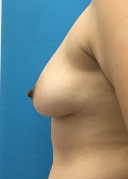 Breast Augmentation Gallery - Patient 46614387 - Image 3