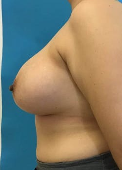 Breast Augmentation Gallery - Patient 46614387 - Image 4