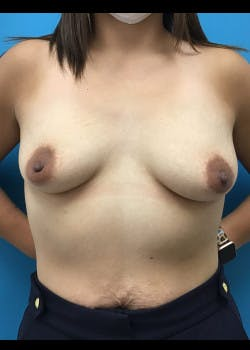 Breast Augmentation Gallery - Patient 46614422 - Image 1