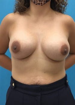 Breast Augmentation Gallery - Patient 46614422 - Image 2