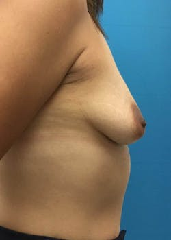 Breast Augmentation Gallery - Patient 46614422 - Image 3