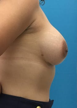 Breast Augmentation Gallery - Patient 46614422 - Image 4