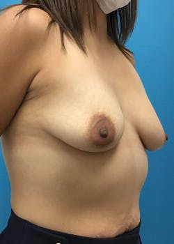 Breast Augmentation Gallery - Patient 46614422 - Image 5