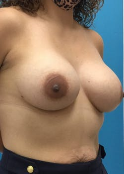 Breast Augmentation Gallery - Patient 46614422 - Image 6