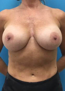 Breast Augmentation Gallery - Patient 46614455 - Image 1