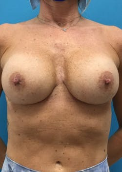 Breast Augmentation Gallery - Patient 46614455 - Image 2